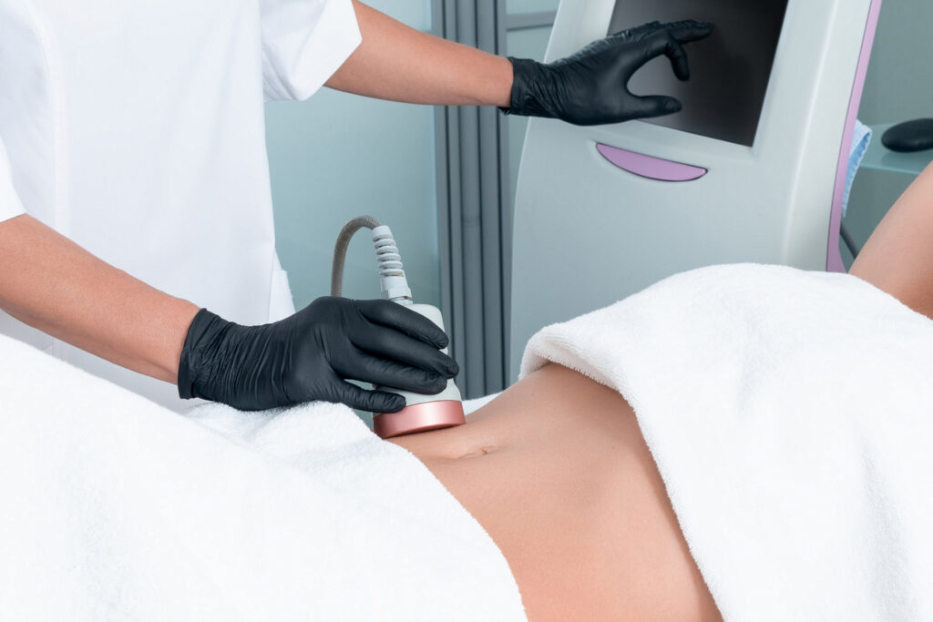 การรักษาด้วยเลเซอร์กำจัดไขมัน